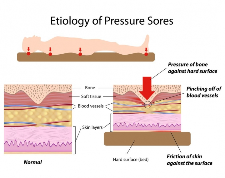 Pressure Ulcer Prevention: Advice From The Experts