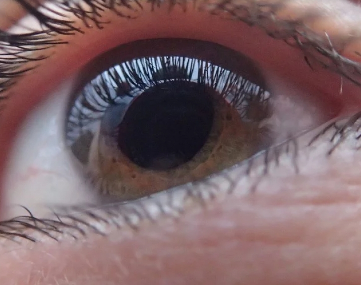 Glaucoma Awareness Month: Keeping Your Eyes Healthy