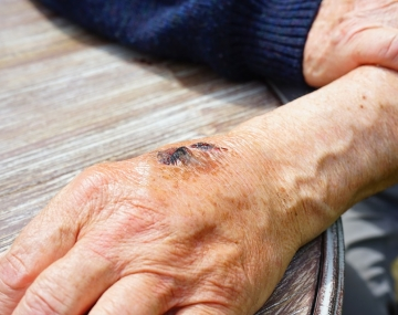 How To Prevent, Clean & Manage Wounds In Your Care Home